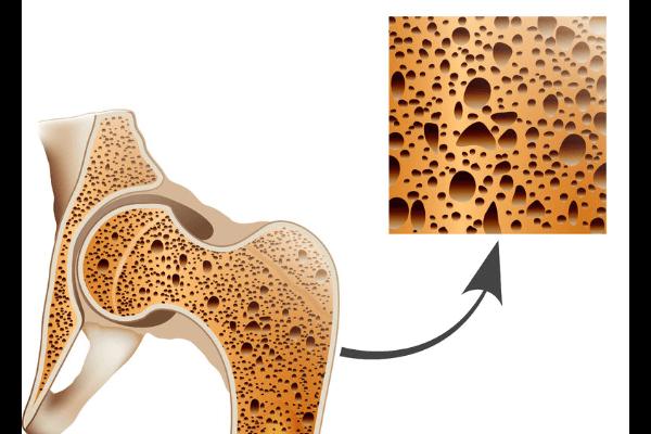 骨粗しょう症|盛岡市のまさと脳神経内科クリニック