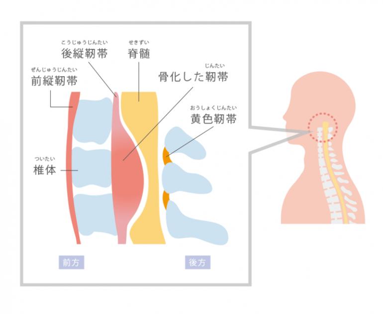 頸椎後縦靱帯骨化症 盛岡市まさと脳神経内科クリニック